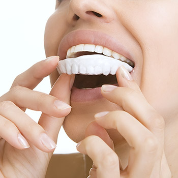 Patient completing at-home teeth whitening