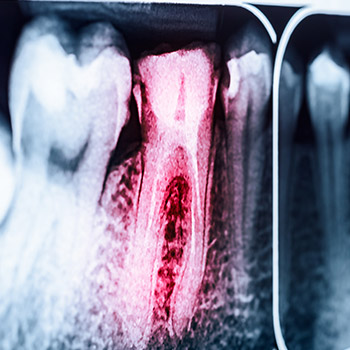 Dental x-ray of root canal treated tooth