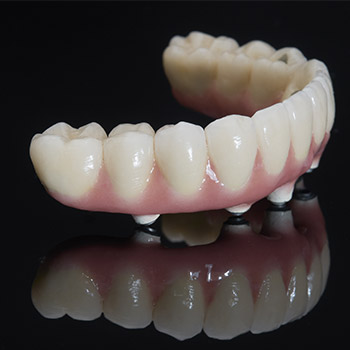 Implant denture prior to placement