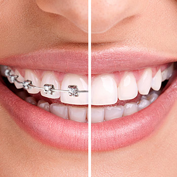 Teeth half with Invisalign half with bracket and wire braces