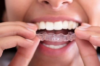 A woman putting in an Invisalign aligner