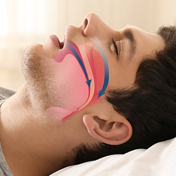 Sleeping man with airway animation over his profile