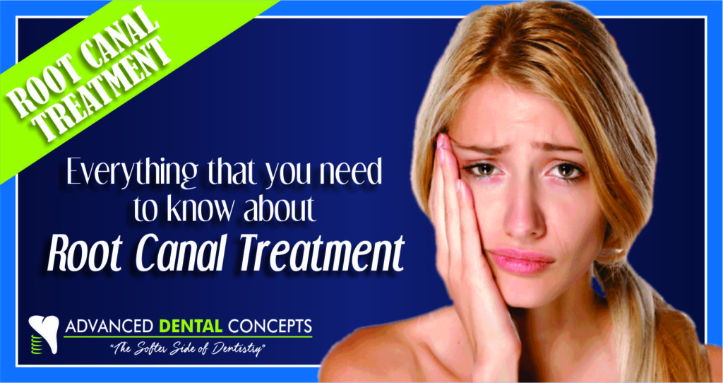 Root Canal Treatment, what you need to know.
